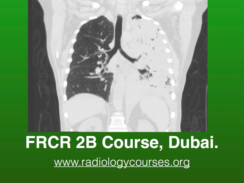 FRCR 2B Course 2 Days, 6-7 Sep 2019 Aintree, Dubai, John