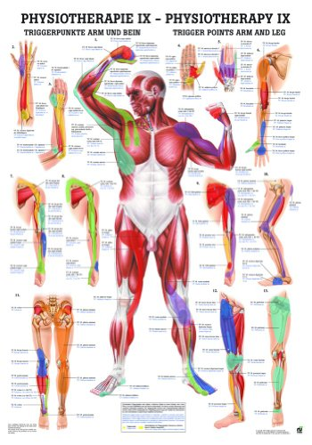 Trigger Points: Arms and Legs Laminated Chart