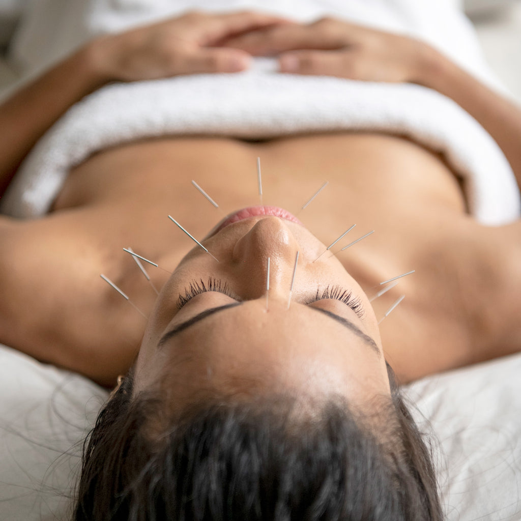 Acupuncture | Soho Acupuncture Center NYC