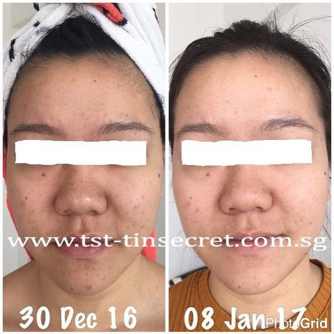TST Tin Secret Singapore 10 days acne improvement