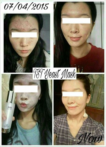 TST Tin'Secret SG Yeast Mask Benefits - Pic 2