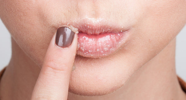 Skincare 101: All You Need To Know About Lip Scrubs