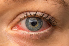Dry red eyes can be treated with Opti-Therm