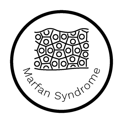 Marfan Syndrome Report