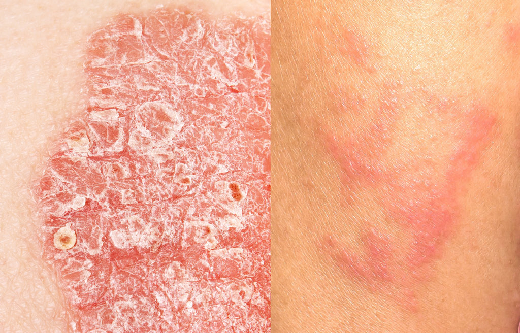 Education What S The Difference Between Psoriasis And