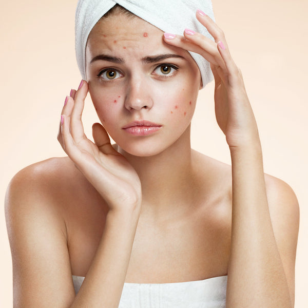 Translating Skin Problems: What Do They Really Mean?