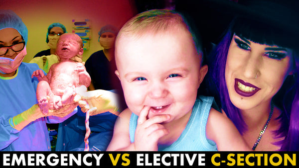 LIVE C-section footage + comparing Emergency Vs Elective cesarean | Part 1
