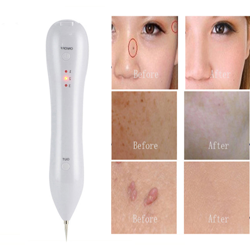 Mole removal pen mart wind for Tattoo mole on face