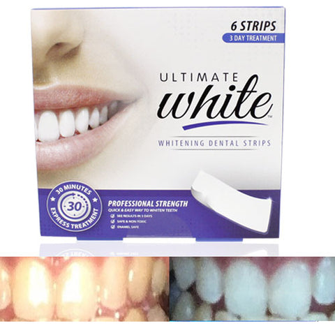 Ultimate 30 min Express teeth Whitening Strips