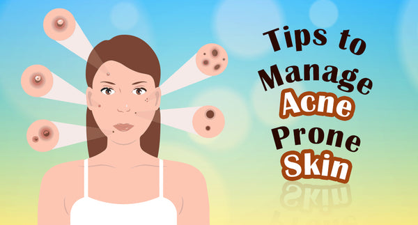 TIPS TO MANAGE ACNE PRONE SKIN