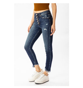 Gemma Button Fly High Rise Ankle Skinny