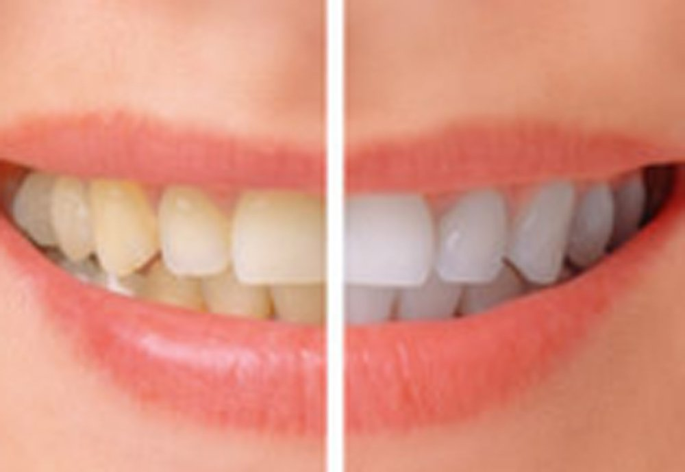 Pearl™ ALL in One Teeth Whitening System