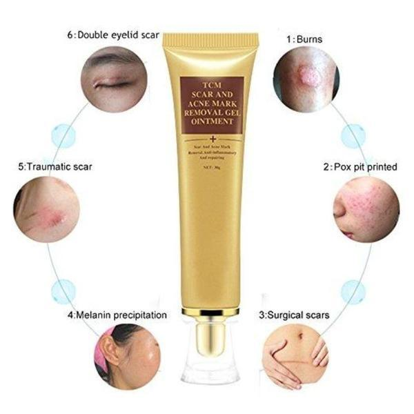 Scar Acne Removal Cream