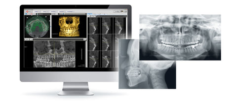 Dental 3D CBCT Systems Rotograph Evo 3D