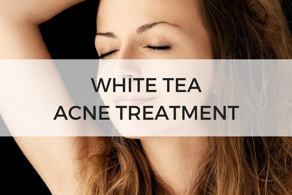 white tea acne treatment