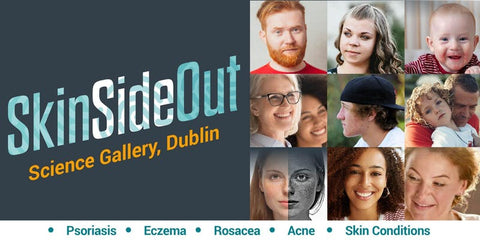SkinSideOut event