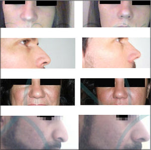 Buy NoseSecret - Instant nose reshaping without a nose job