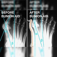 bunion correctpr before after