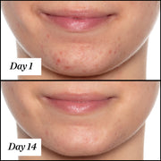 U.F.O. product usage, before and after results from day 1 to day 14. Clear and visible results; reduced redness and acne.