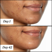 U.F.O. product usage, before and after results from day 1 to day 42 on dark skin. Clear and visible results; reduced redness and acne.
