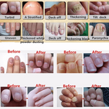 Fungal Nail Oil Treatment
