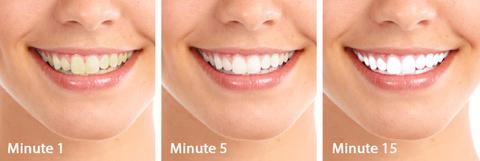teeth,health,battery,beauty