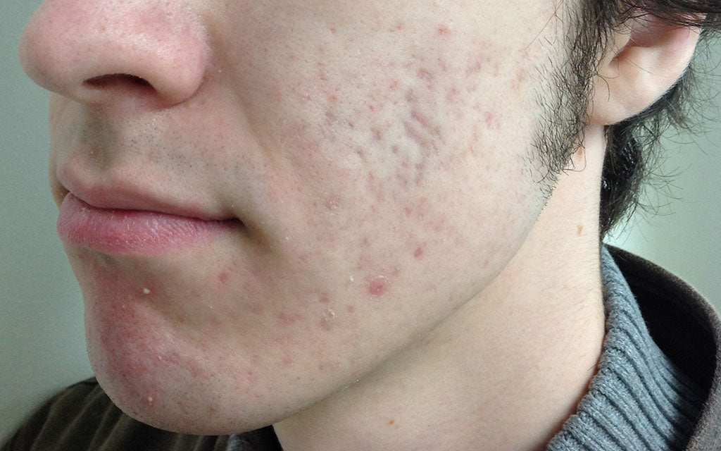 Acne Scarring Results 007 - Left - After Treatment Karen Bowen Skin Clinic Perth