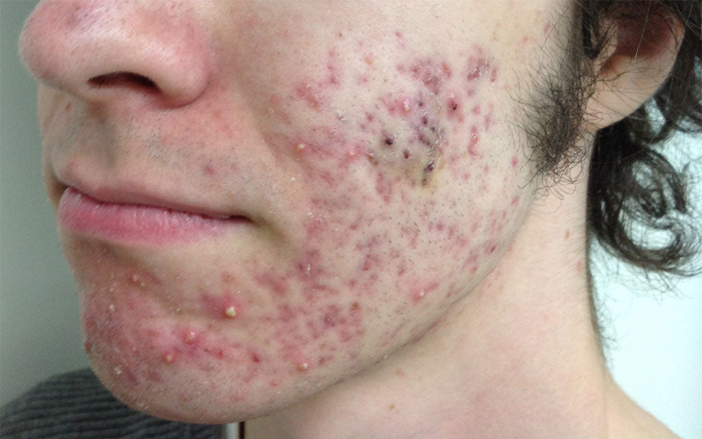 Acne Scarring Results 007 - Left - Before Treatment Karen Bowen Skin Clinic Perth