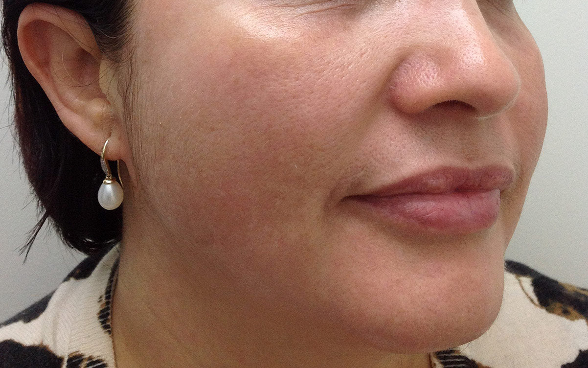 IPL Treatment Perth - Pigmentation 02 - Right - After - Karen Bowen Skin Clinic Perth