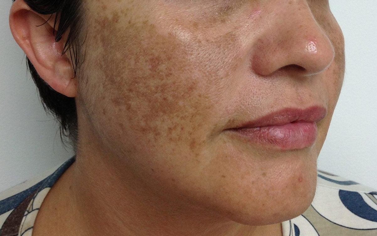 IPL Treatment Perth - Pigmentation 02 - Right - Before - Karen Bowen Skin Clinic Perth