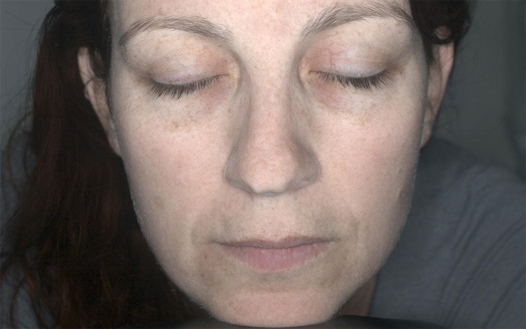 IPL Perth - Pigmentation Treatment 001 - Front - After Karen Bowen Skin Clinic IPL Perth