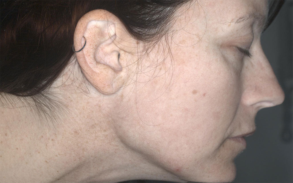 IPL Treatment Perth - Pigmentation - Right - After - Karen Bowen Skin Clinic Perth