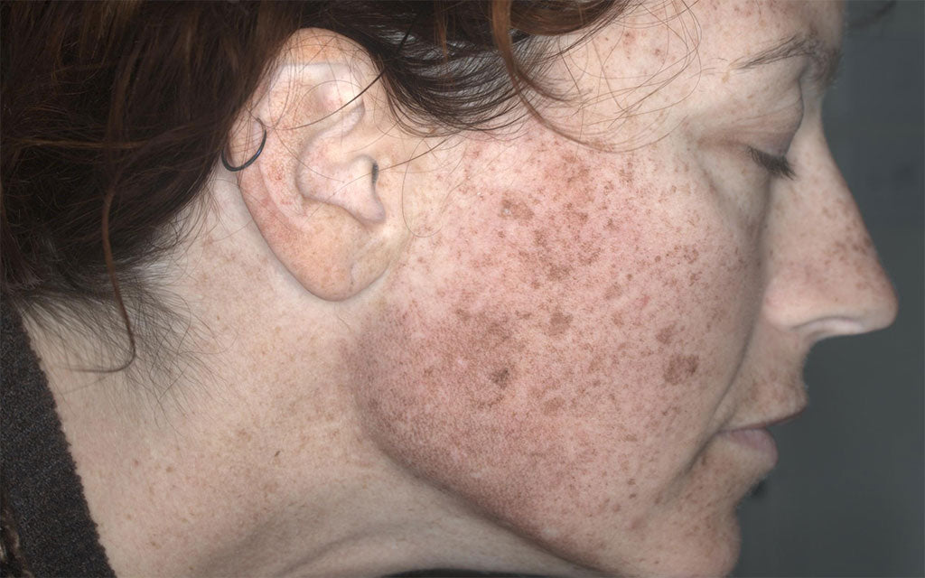 IPL Treatment Perth - Pigmentation - Right - Before - Karen Bowen Skin Clinic Perth