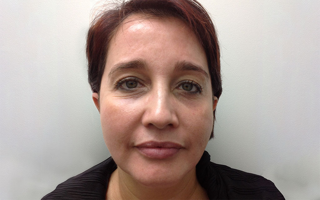 Pigmentation Treatment 002 - Front - After Karen Bowen Skin Clinic Perth