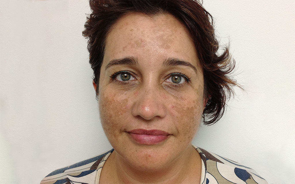 Pigmentation Treatment 002 - Front - Before Karen Bowen Skin Clinic Perth