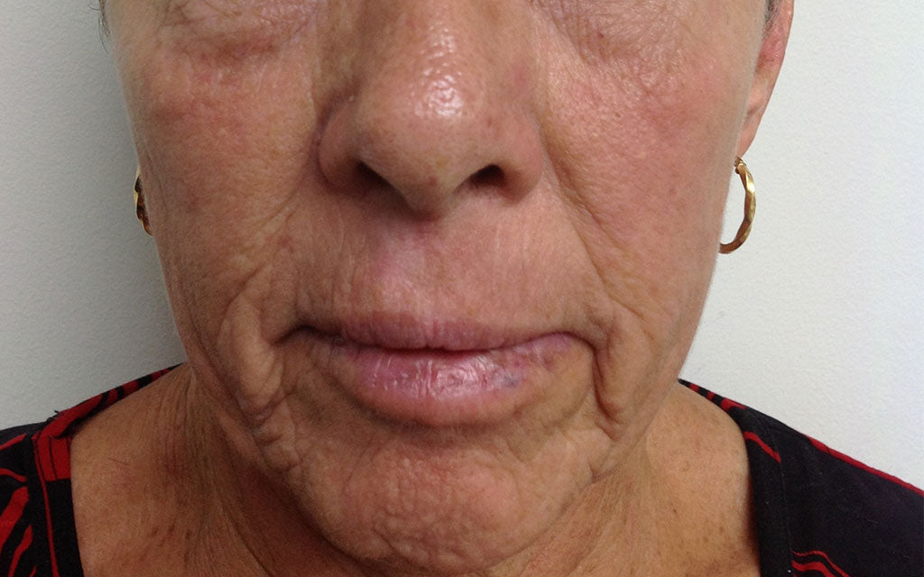 Pigmentation Treatment 004 - Front - After Karen Bowen Skin Clinic Perth