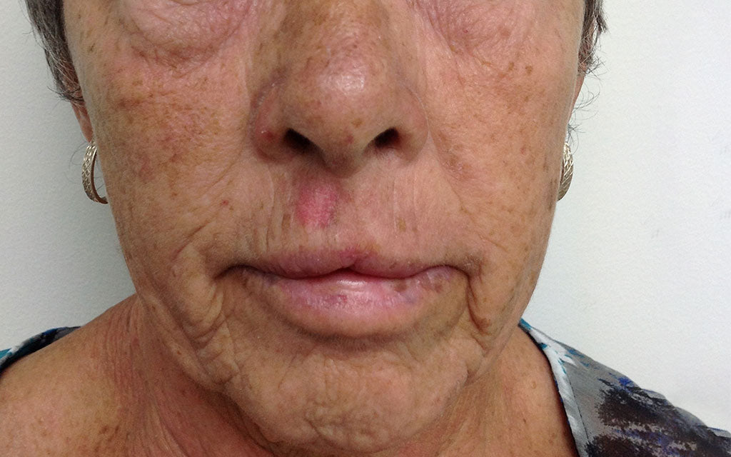 Pigmentation Treatment 004 - Front - Before Karen Bowen Skin Clinic Perth