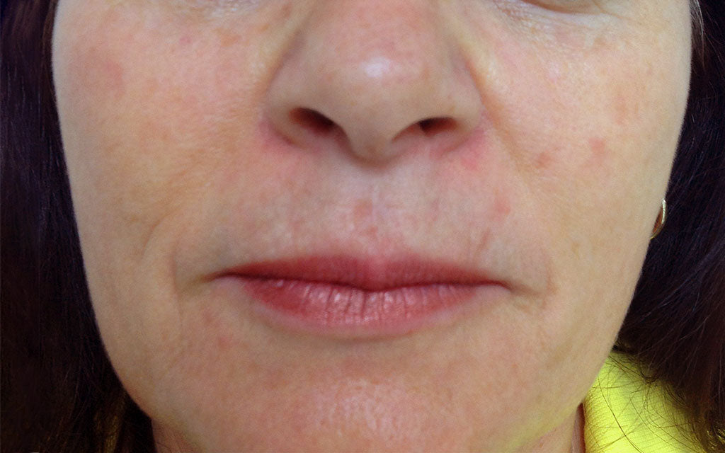 Pigmentation Treatment 005 - Front - After Karen Bowen Skin Clinic Perth