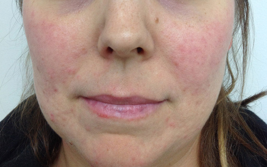 Rosacea Treatment 003 - Front - After Karen Bowen Skin Clinic Perth
