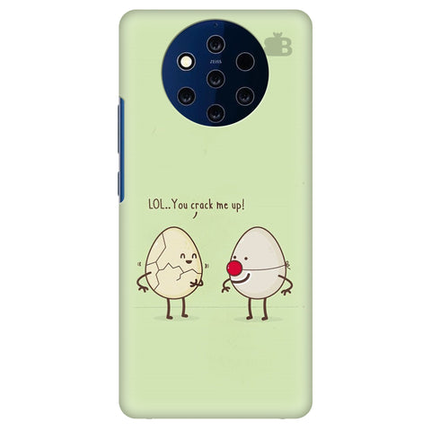 You Crack me up Nokia 9 Cover
