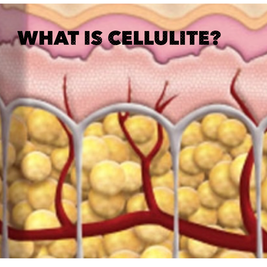 Cellulite: What is the Story?