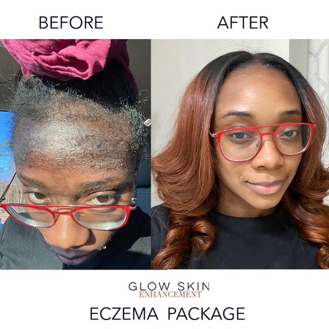 glow skin enhancement results before and after eczema package