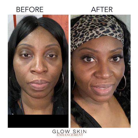 Glow Skin Enhancement before and after