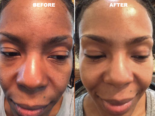 Before and after discoloration and premature aging