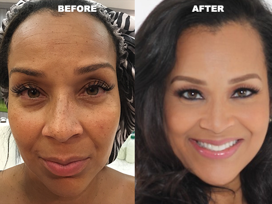 Glow Skin Enhancement Celebrity skin care treatment results