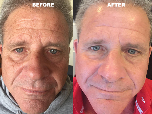 Before and after glow skin enhancement