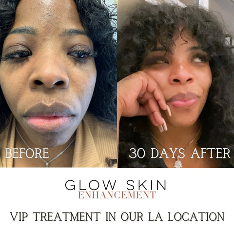 Glow Skin Enhancement before and after VIP treatment