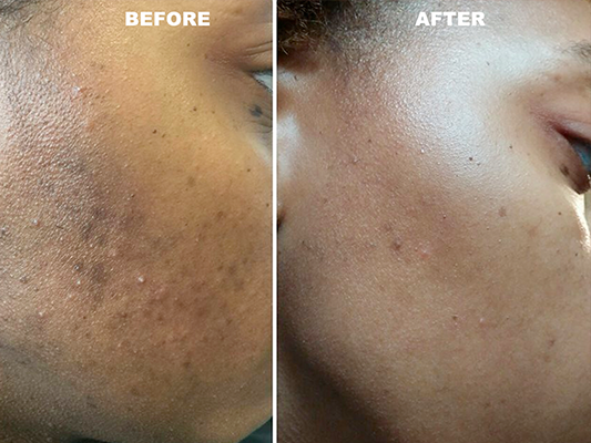 Before and after adult acne and discoloration