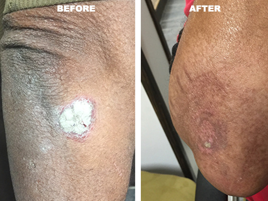 Glow Skin Enhancement treatment for Psoriasis