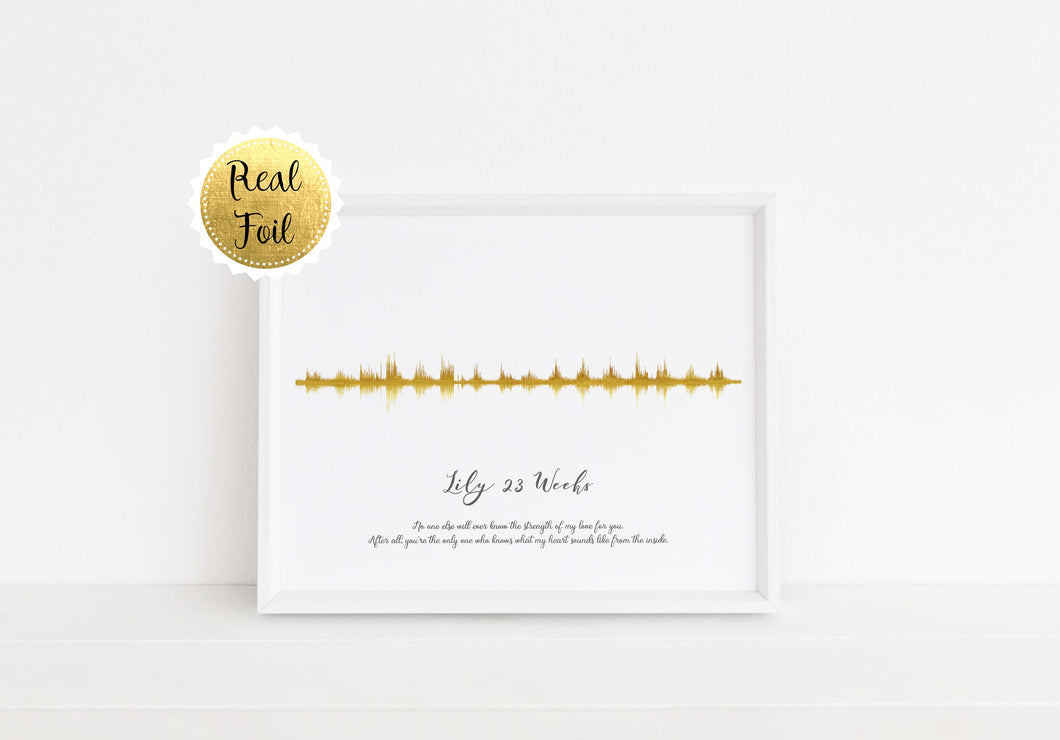 Baby Heartbeat Art, baby heartbeat wall art, baby heartbeat artwork, gold sonogram prints